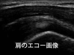 超音波観察装置